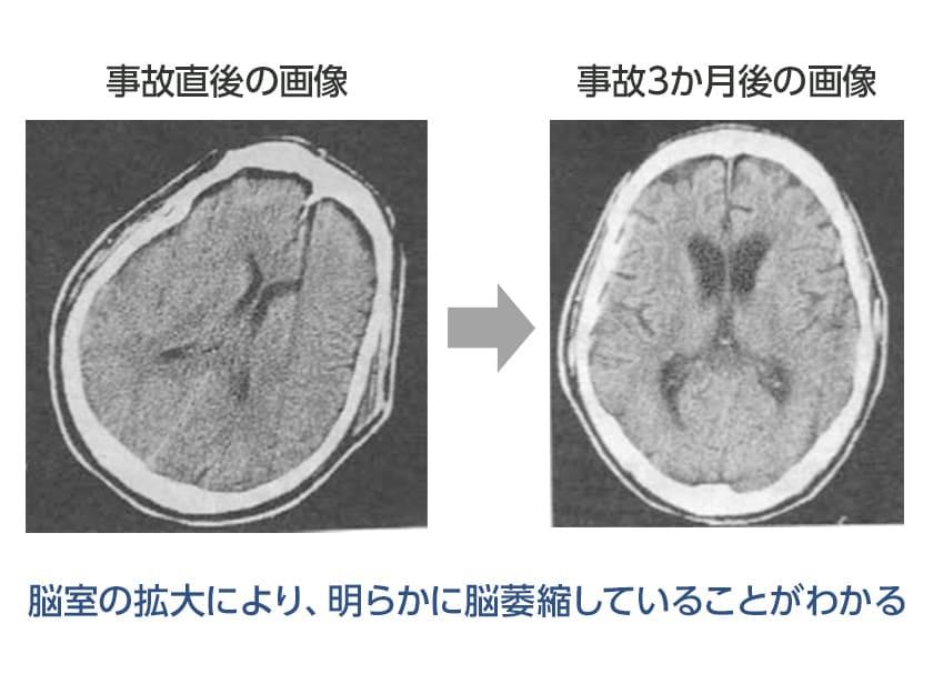 脳室の拡大により、明らかに脳萎縮していることがわかるイメージ